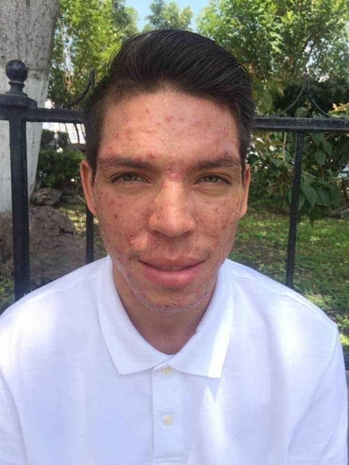 kit anti acne seytu