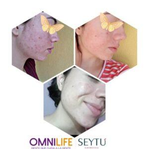 cicatrices de acne antes y despues