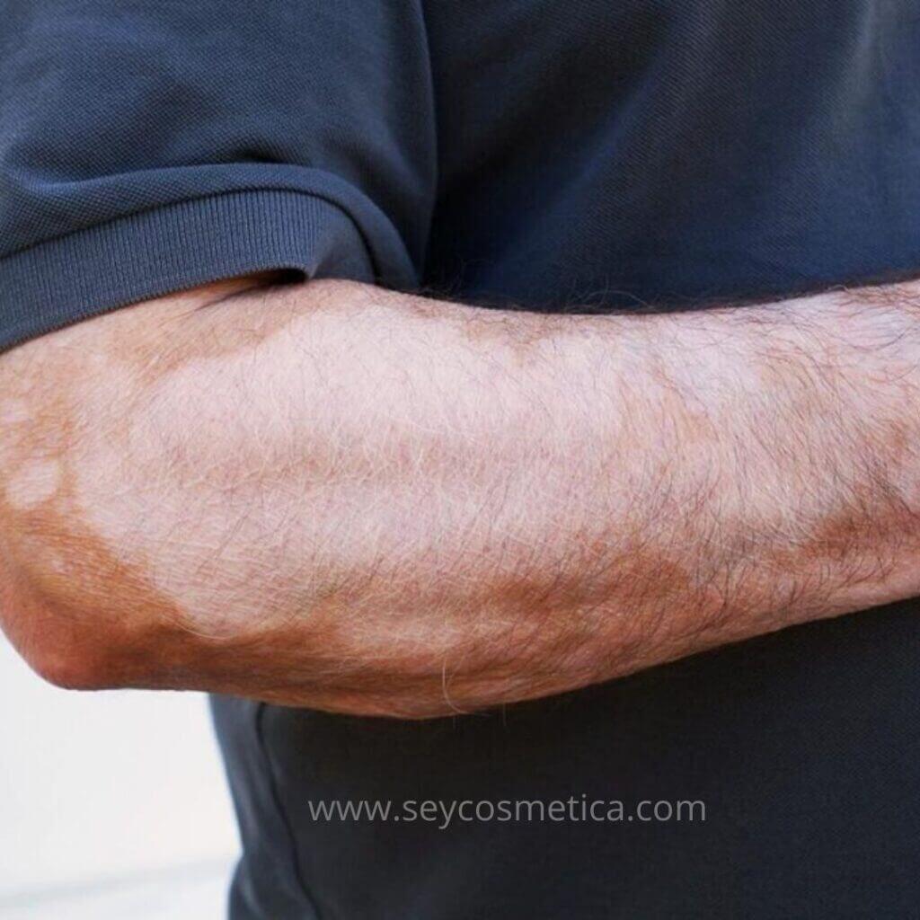 vitiligo en brazos