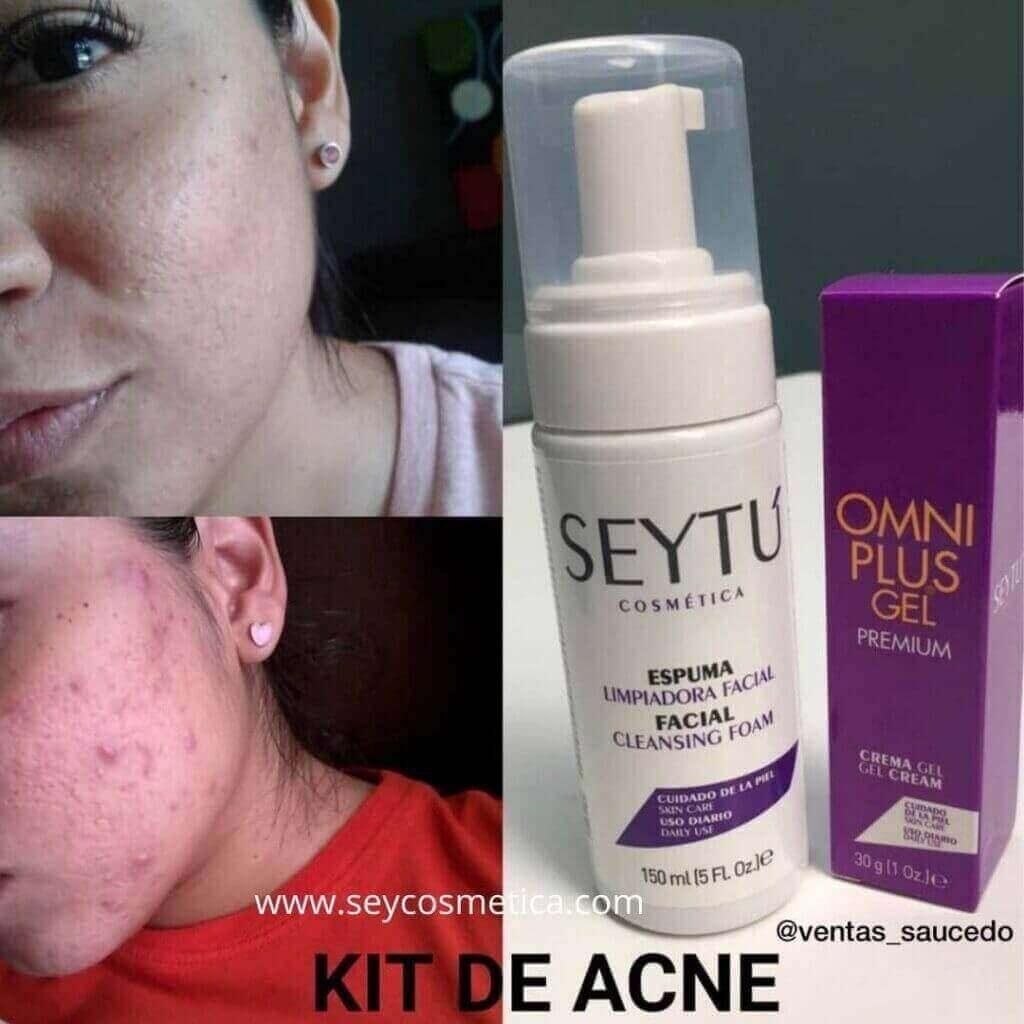 omniplus gel testimonio acne